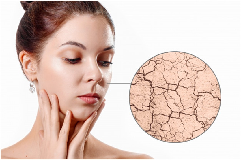 How to treat dry skin at home